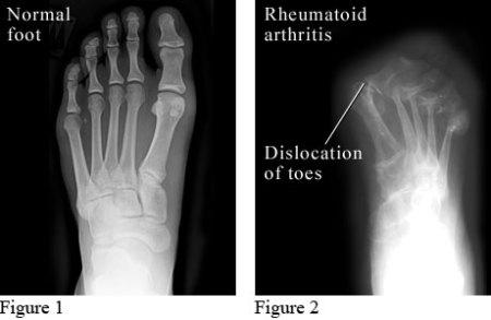 x-ray ke atas pesakit normal dan pesakit rheumatoid arthritis