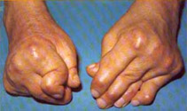 rheumatoid arthritis affecting hands